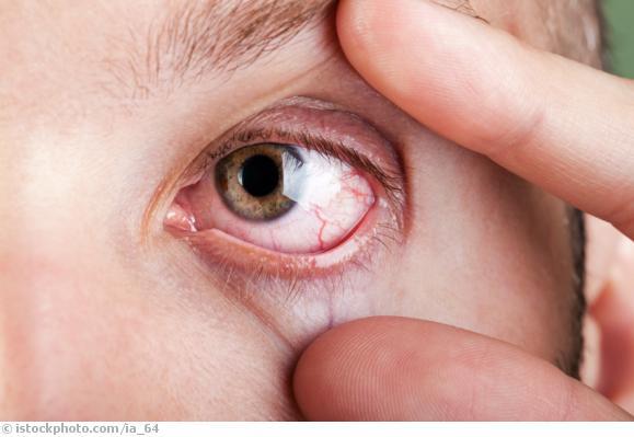 trockene Augen