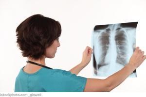 Pneumologie (Lungenärzte)