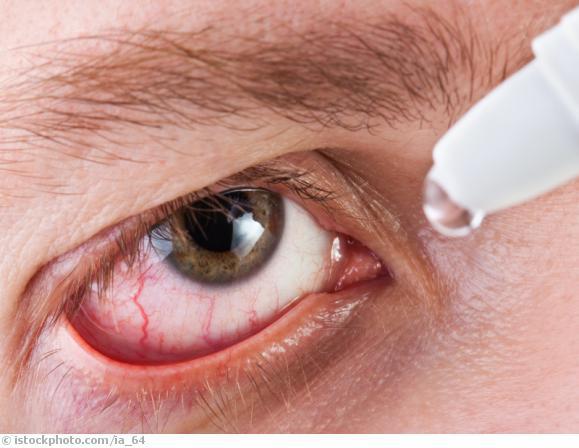 Augengrippe