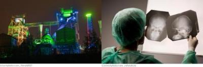Duisburg Neurochirurgie