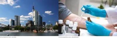 Frankfurt am Main Allergologie