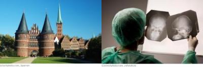 Lübeck Neurochirurgie