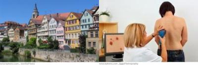 Tübingen Haut- u. Geschlechtskrankheiten