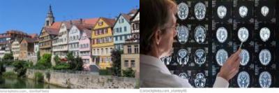Tübingen Neurologie